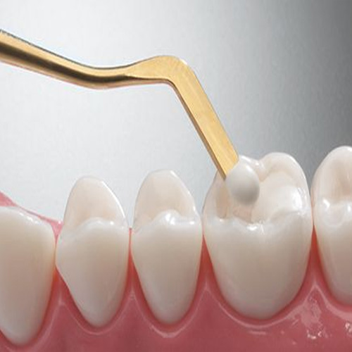 Baton Rouge LA White Composite Tooth Fillings | Tooth Colored Fillings